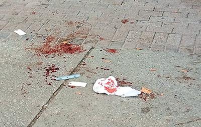 blood on sidewalk